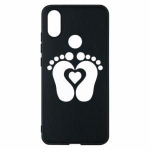 Xiaomi Mi A2 Case Baby love