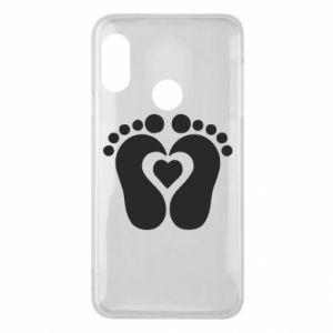 Mi A2 Lite Case Baby love