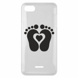 Xiaomi Redmi 6A Case Baby love