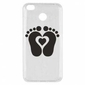 Xiaomi Redmi 4X Case Baby love