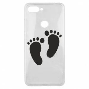 Xiaomi Mi8 Lite Case Baby