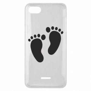 Xiaomi Redmi 6A Case Baby