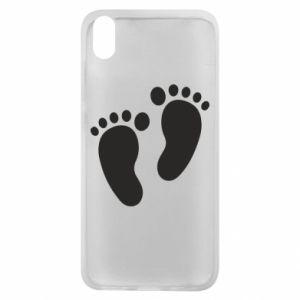 Xiaomi Redmi 7A Case Baby