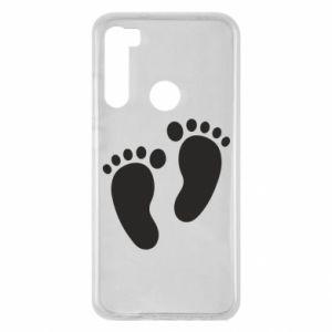 Xiaomi Redmi Note 8 Case Baby