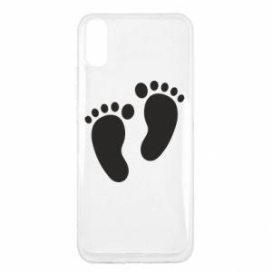 Xiaomi Redmi 9a Case Baby