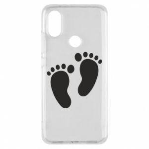 Xiaomi Mi A2 Case Baby