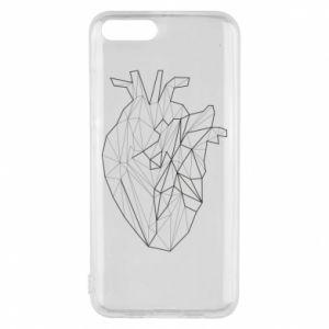 Etui na Xiaomi Mi6 Heart line