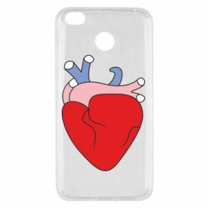 Etui na Xiaomi Redmi 4X Heart with vessels
