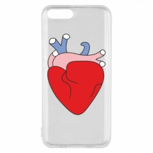 Phone case for Xiaomi Mi6 Heart with vessels