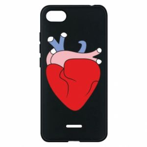Phone case for Xiaomi Redmi 6A Heart with vessels