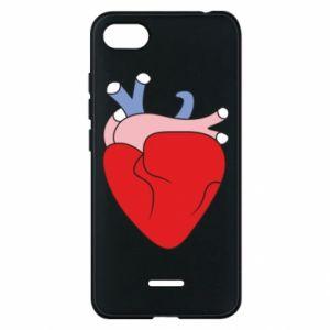 Phone case for Xiaomi Redmi 6A Heart with vessels - PrintSalon